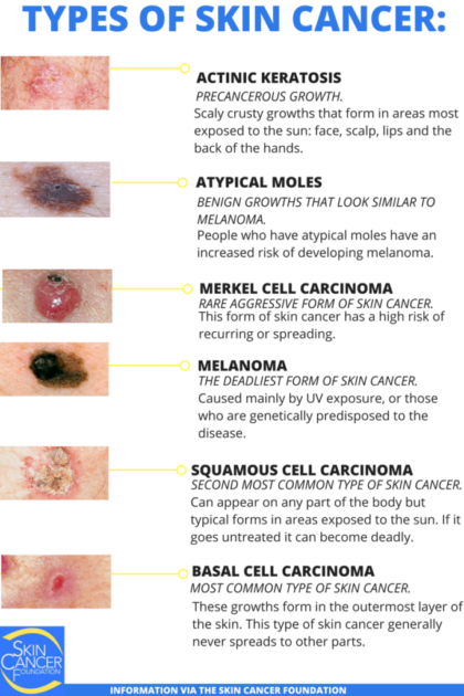 Skin Cancer Types Basal Cell Carcinoma Bcc Squamous