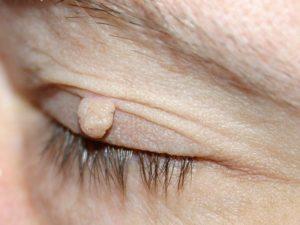 Skin Tags Archives Derm Skin Cancer Center